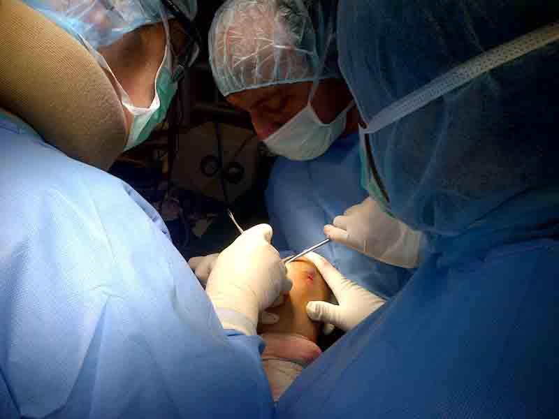 Trapianto di cartilagine senza dolore per riparare e rigenerare i tessuti
